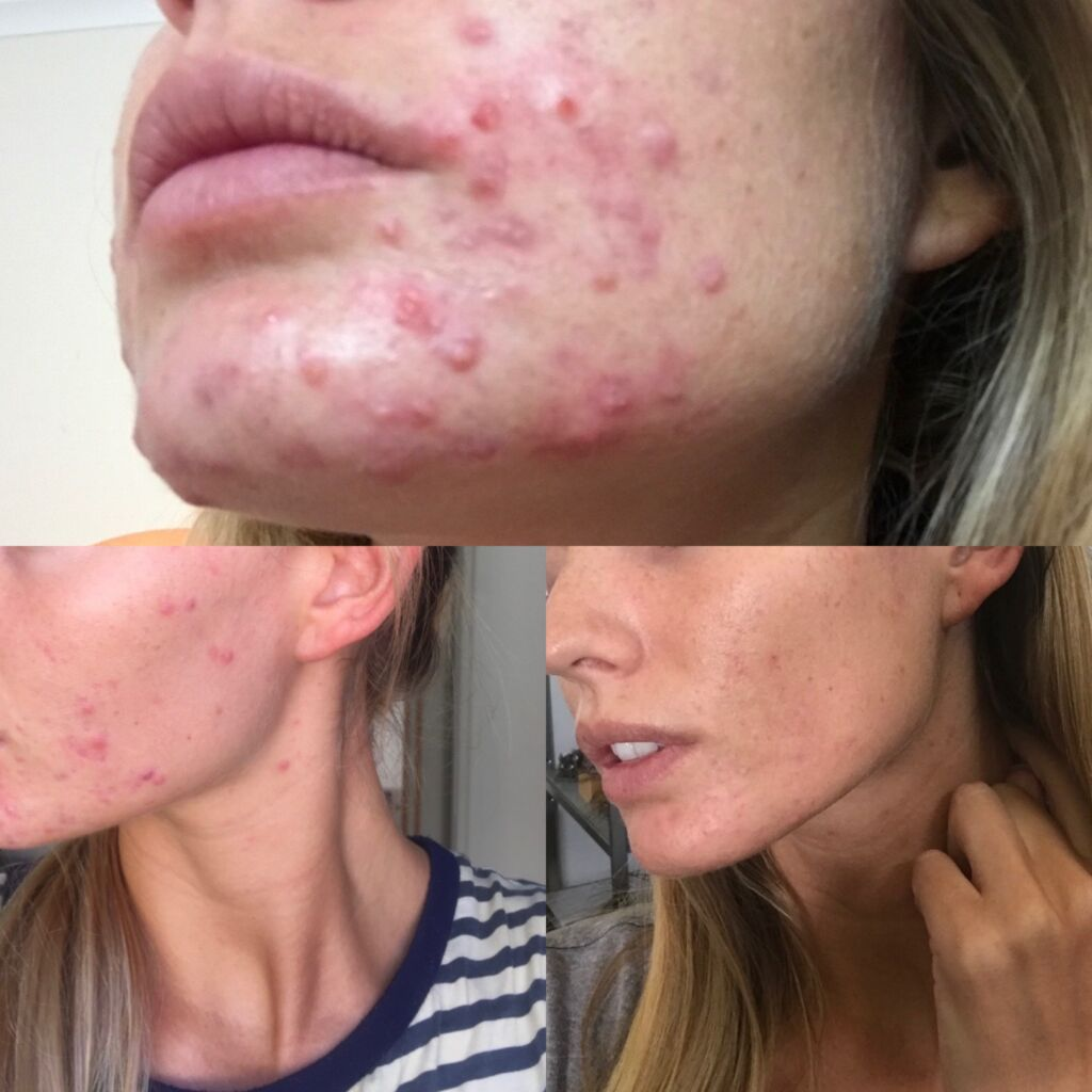 Cystic Acne, Cystic Acne Results With Cannabella, Cannabella